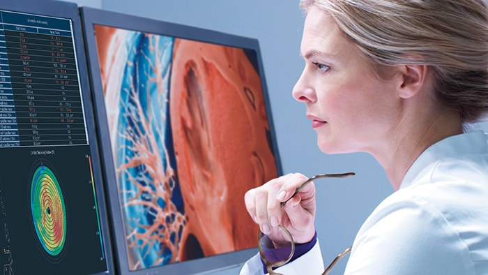 Philips introduceert op RSNA 2020 geautomatiseerde Radiology Workflow Suite met AI